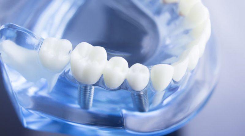 Les différents types de blanchiment dentaire